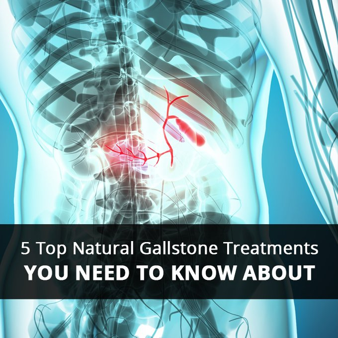 5 Top Natural Gallstone Treatments You Need To Know