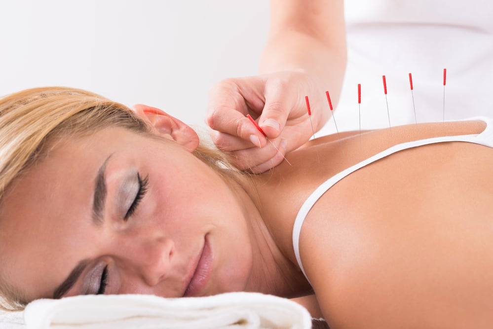 acupuncture for trigger points