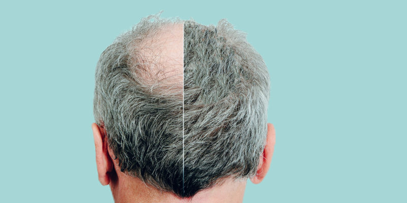 What the Cost of a Hair Transplant Means To You