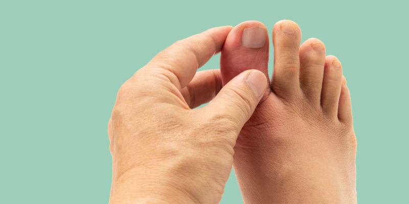 Uric Acid & Gout: Symptoms, Treatments & Prevention