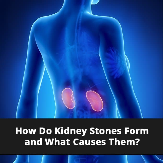 How Do Kidney Stones Form And What Causes Them Eu Natural
