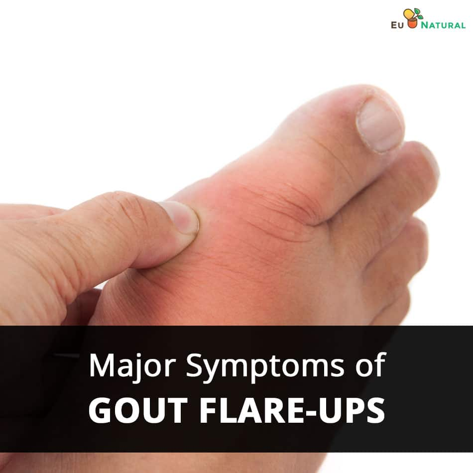 Major Symptoms of Gout Flare-Ups