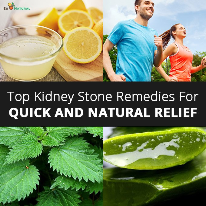 Top Kidney Stone Remedies For Quick and Natural