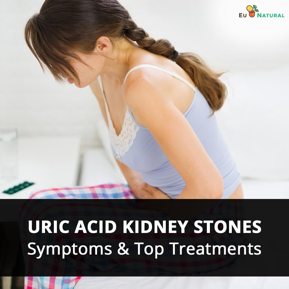Uric Acid Kidney Stones Symptoms Top Treatments Eu Natural