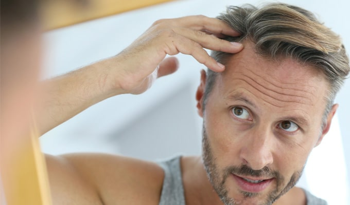 When Does Hair Loss Start? Let's Examine the Research