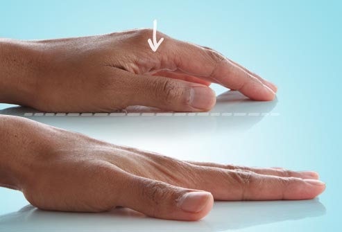 photo of finger stretch
